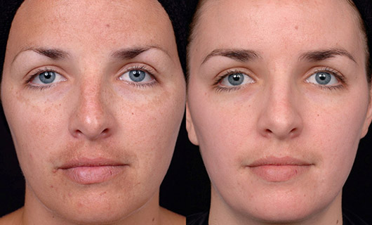 Pigmentation Reduction Package